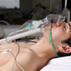 young man w-O2 mask in ICU